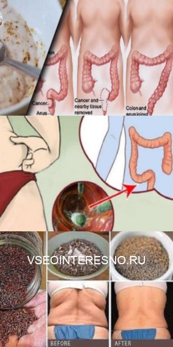 Эти два ингредиента выведут из толстой кишки килограммы токсинов!