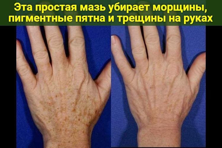 eta-prostaya-maz-ubiraet-morschiny-pigmentnye-pyatna-i-treschiny-na-rukah-2818146