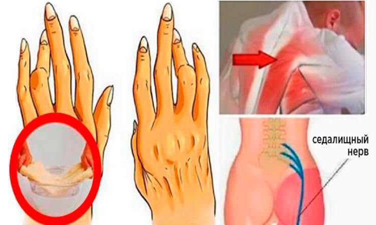 eto-maslo-izbavit-ot-artrita-radikulita-i-eschyo-50-bolezney-luchshe-chem-aptechnye-lekarstva-8156733