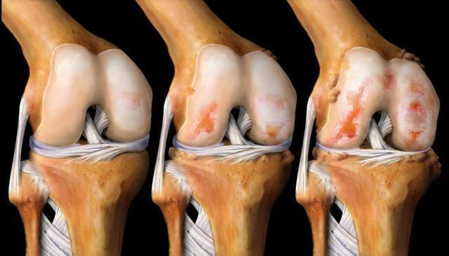 lechit-koleni-vosstanavlivaet-kosti-i-sustavy-6657330