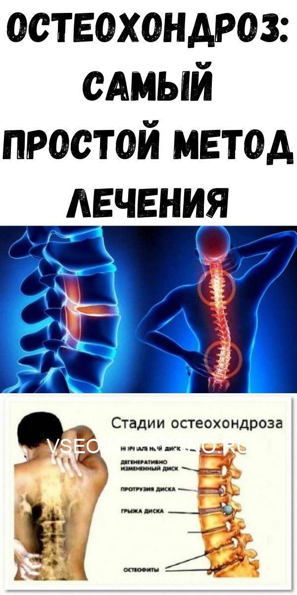 osteohondroz-samyy-prostoy-metod-lecheniya-8378560