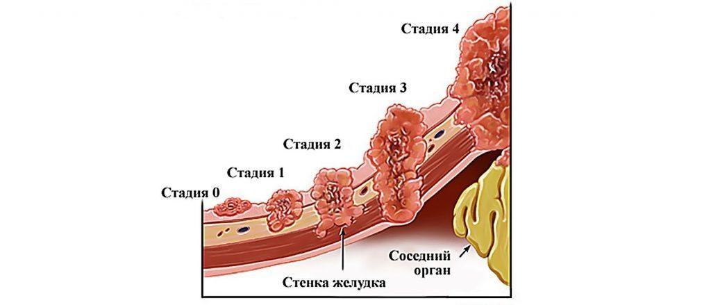 stadii-raka-zheludka-2-1024x439-1-1521294